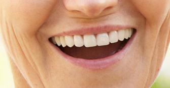 Restorative Dentist Kenmore