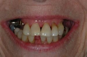 Dentures in Kenmore WA
