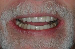 Kenmore Dentures