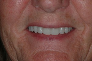 Porcelain Veneers Kenmore Washington