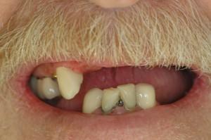 Dentures Kenmore