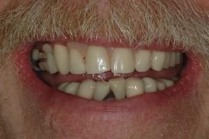 Dentures Kenmore Washington