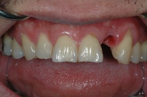 Dental Implants Kenmore Before