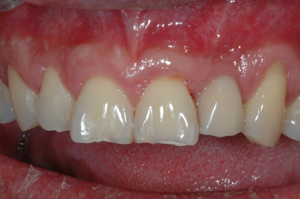 Dental Implants Kenmore After