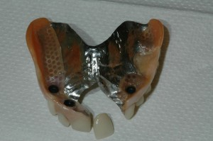 Partial Denture Kenmore