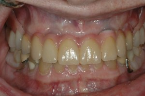 Dental Implants Kenmore