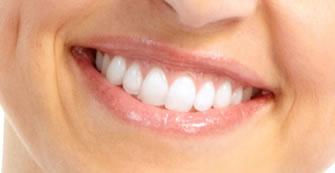 Restorative Dentistry Kenmore