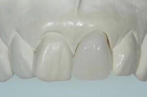 Porcelain Veneers Kenmore