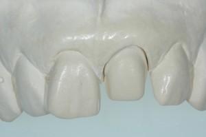 Porcelain Veneers Kenmore WA