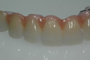 Dental Bridge Kenmore