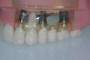 Dental Implants and artificial teeth