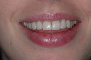 Teeth Whitening Kenmore