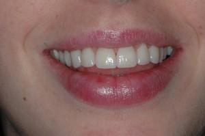 Teeth Whitening Kenmore