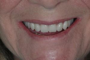 Dentures Kenmore WA