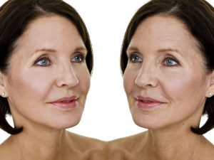 Nonsurgical Facelift in Barstow - Look as Young as You Feel