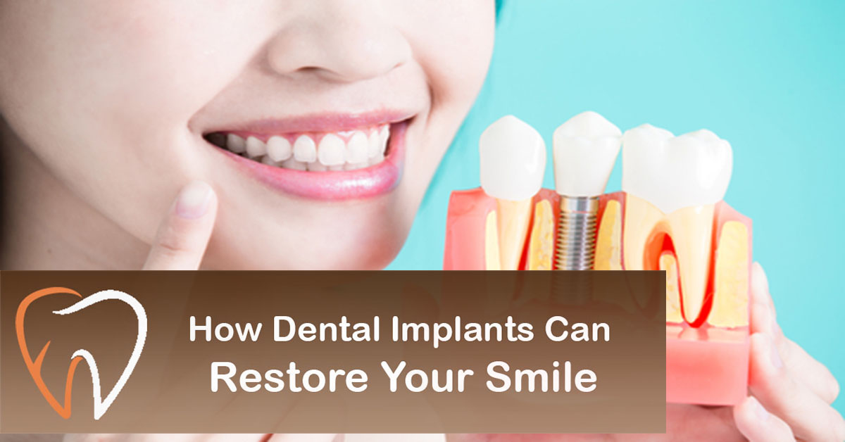 How Dental Implants Can Restore Your Smile
