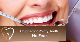 Chipped or Pointy Teeth? No Fear