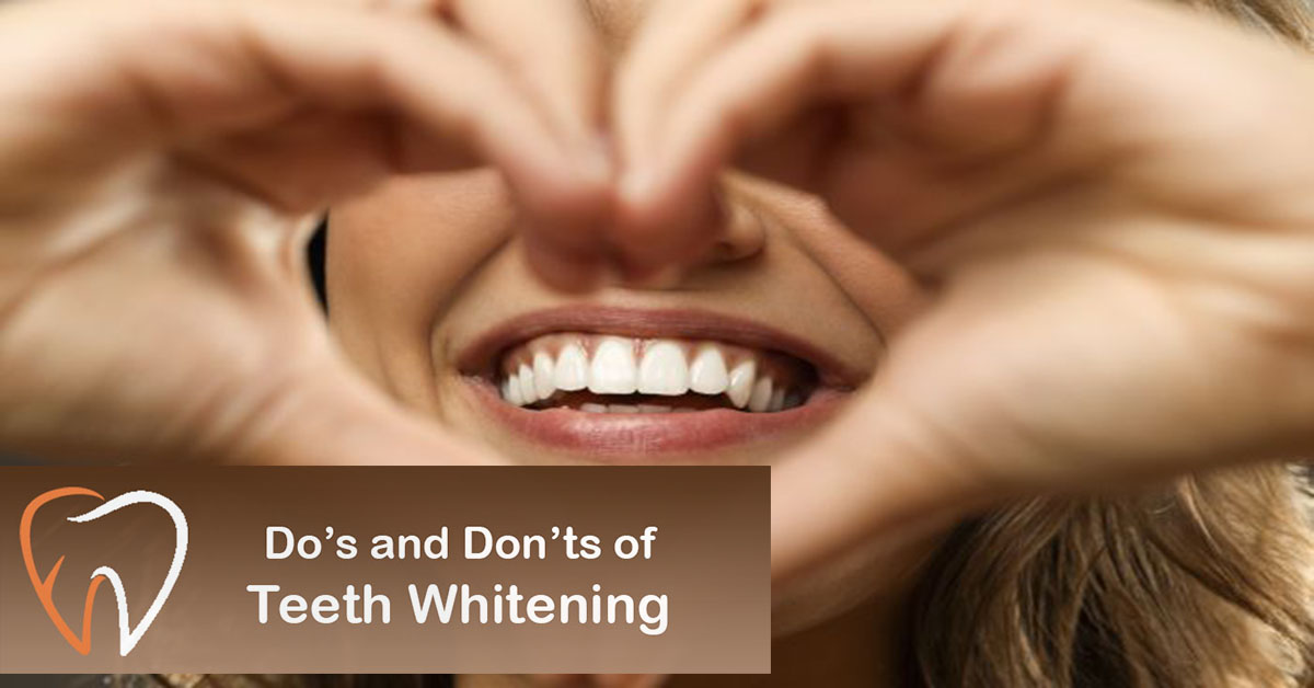 Do's and Don'ts of Teeth Whitening