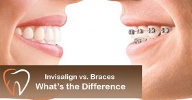 Invisalign-vs-Braces-Whats-the-Difference