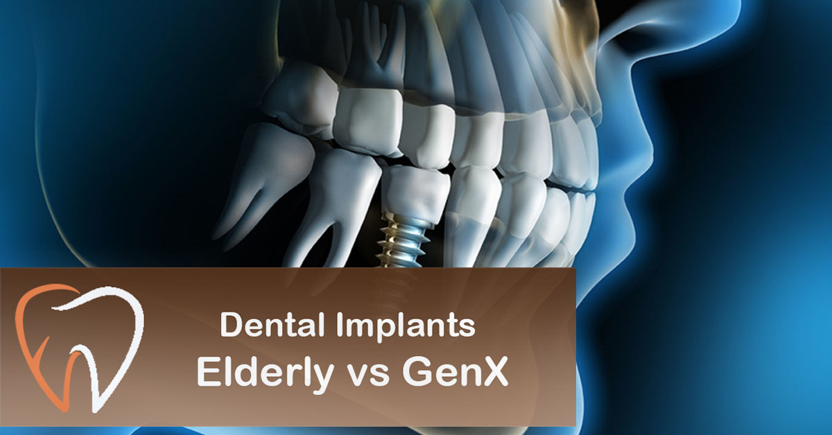 Dental-Implants-Elderly-vs-GenX