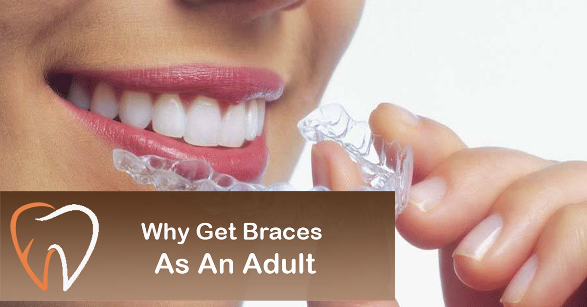 Why-Get-Braces-as-an-Adult