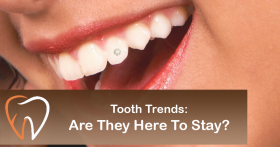 Tooth Trends: Are They Here to Stay