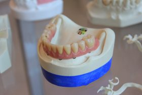 A pair of lower jaw dentures on a white scale rack. Photo by Quang Tri NGUYEN on Unsplash.