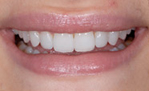 After Durathin Porcelain Veneers from Frederick smiles dental care