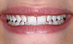 Before Durathin Porcelain Veneers from Frederick smiles dental care