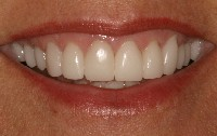 Porcelain Crowns After Restoration With Frederick Smiles Dental Care Dentist