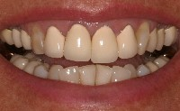 Porcelain Crowns Before Restoration with Frederick smiles dental care Dentist