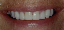 After Porcelain Veneers by Frederick smiles dental care