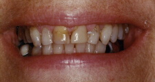 Stained Teeth Before Veneers by Frederick smiles dental care