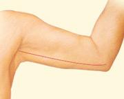 arm lift surgery after