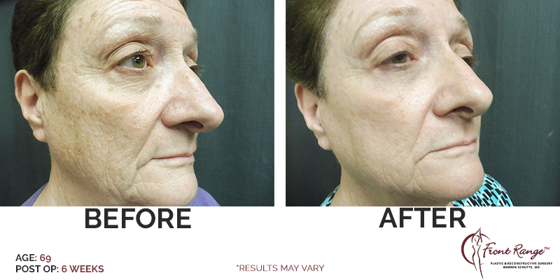 With you facial plastic surgery loveland phrase magnificent