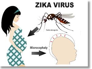 3x4-zika-slide-image
