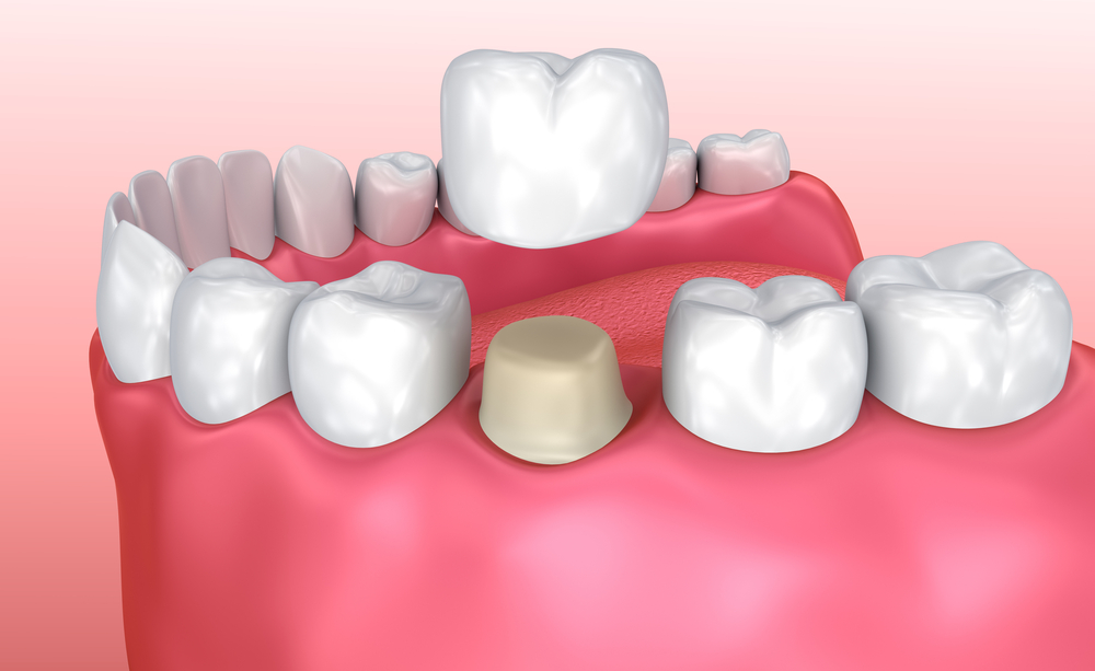 Dental Crown and Their Benefits