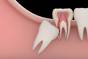 what causes a toothache - impacted tooth