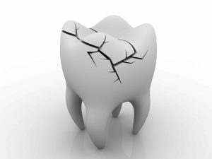 what causes a toothache - cracked tooth