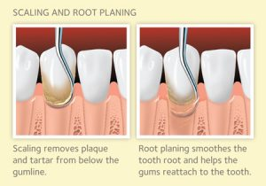 Deep Cleaning-gum disease treatment