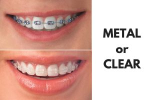 braces-metal or clear