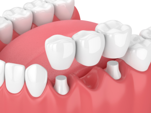 cosmetic dentist-dental bridges