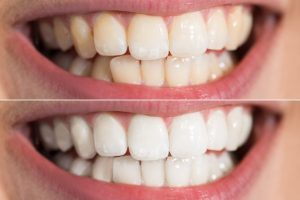 cosmetic dentist-teeth whitening