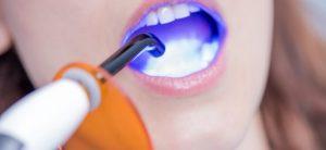 dental bonding 1