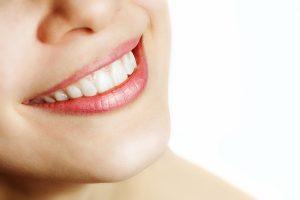 dental crowns 1