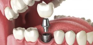 dental implants-arlington va