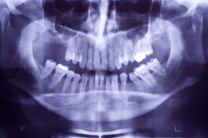 dentist-x-rays