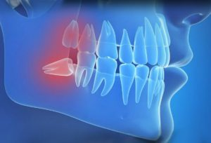 oral surgery-oral surgeon arlington va 2