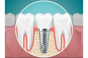 oral surgery-oral surgeon arlington va 3