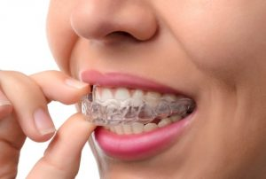 orthodontist arlington va-orthodontic treatment arlington va 3